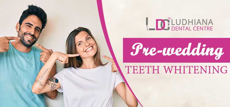How pre-wedding teeth whitening procedure is beneficial for an improved smile?